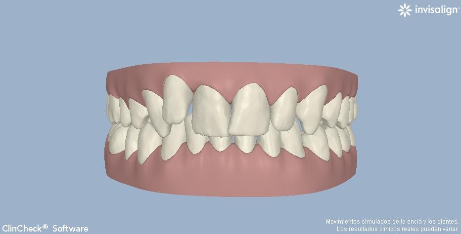 ortodoncia invisible invisalign valencia