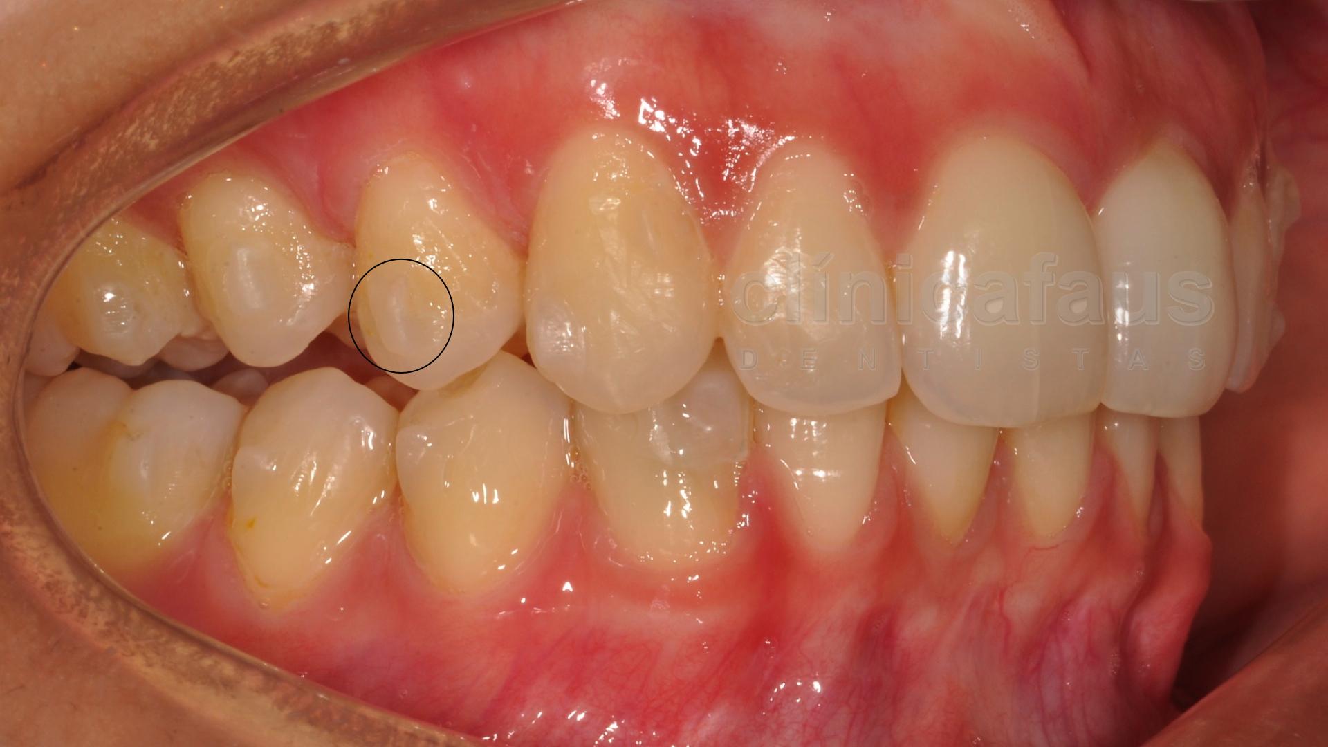 ataches ortodoncia invisible valencia algemesi