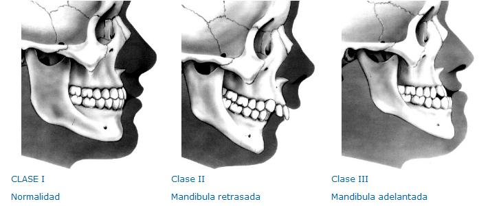 Clase III maloclusión ortodoncia
