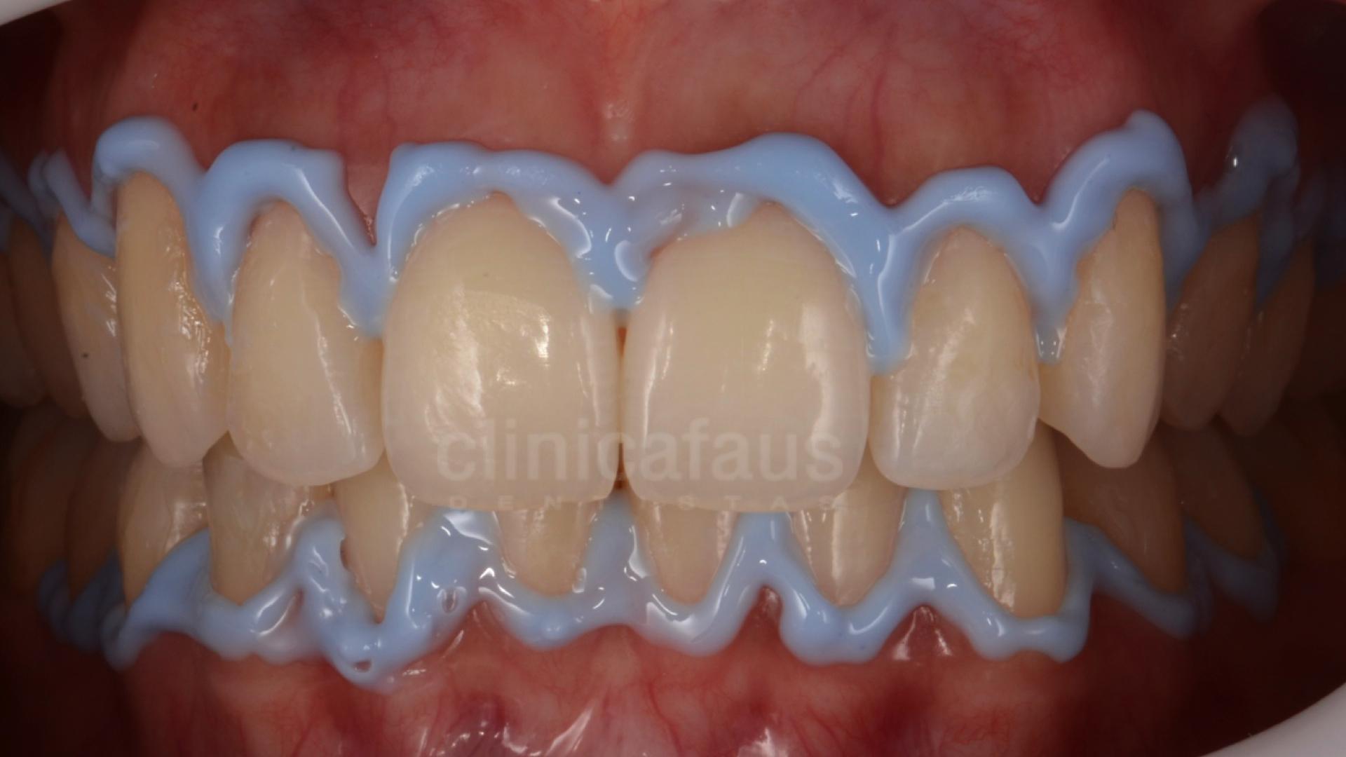 blanqueamiento dental valencia algemesi alzira