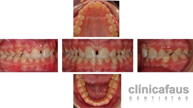 espacio entre los dientes diastema.001