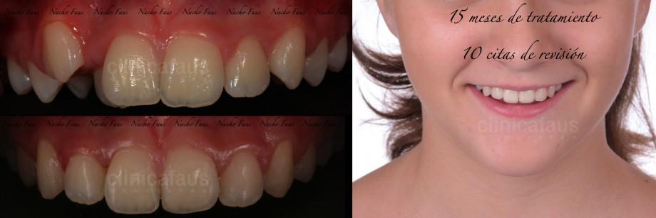 ortodoncia valencia apiñamiento