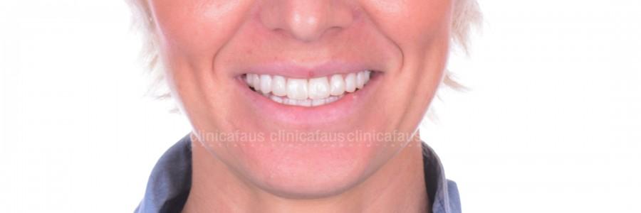 carillas dentales valencia algemesi estetica dental