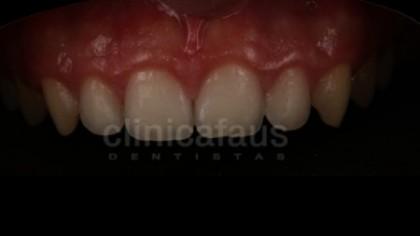 ortodoncia valencia algemesi