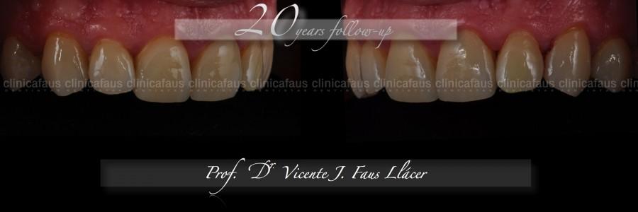 carillas dentales ceramica composite valencia