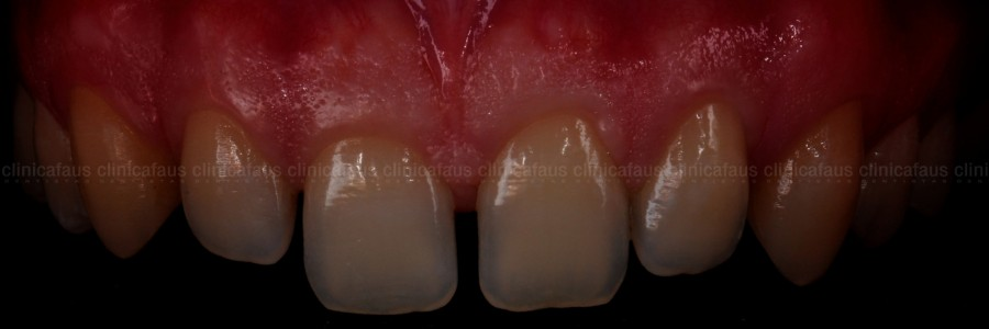 carillas valencia ortodoncia