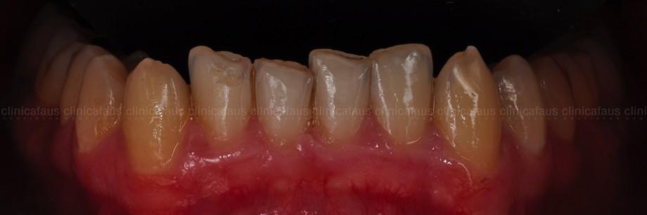 carillas valencia ortodoncia estetica dental
