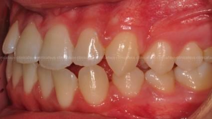 clase III ortodoncia valencia algemesi