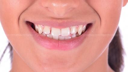 clase III con espacios entre los dientes