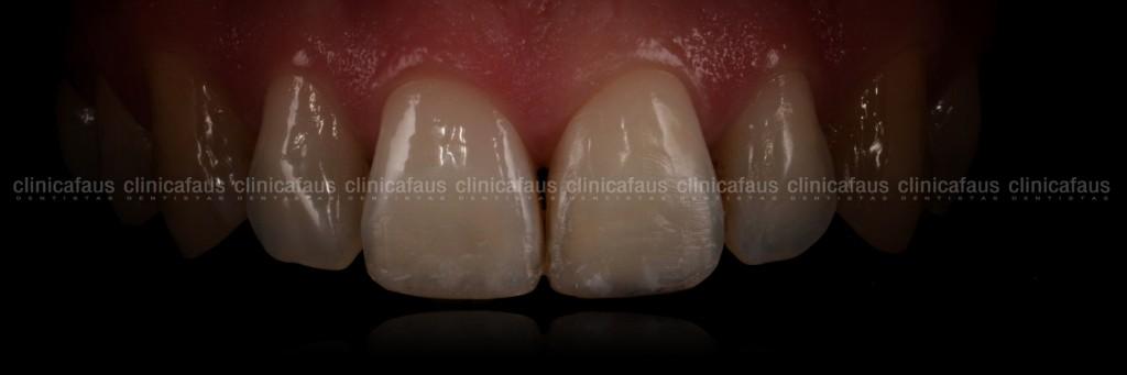 estetica dental valencia dentista clinica dental algemesi