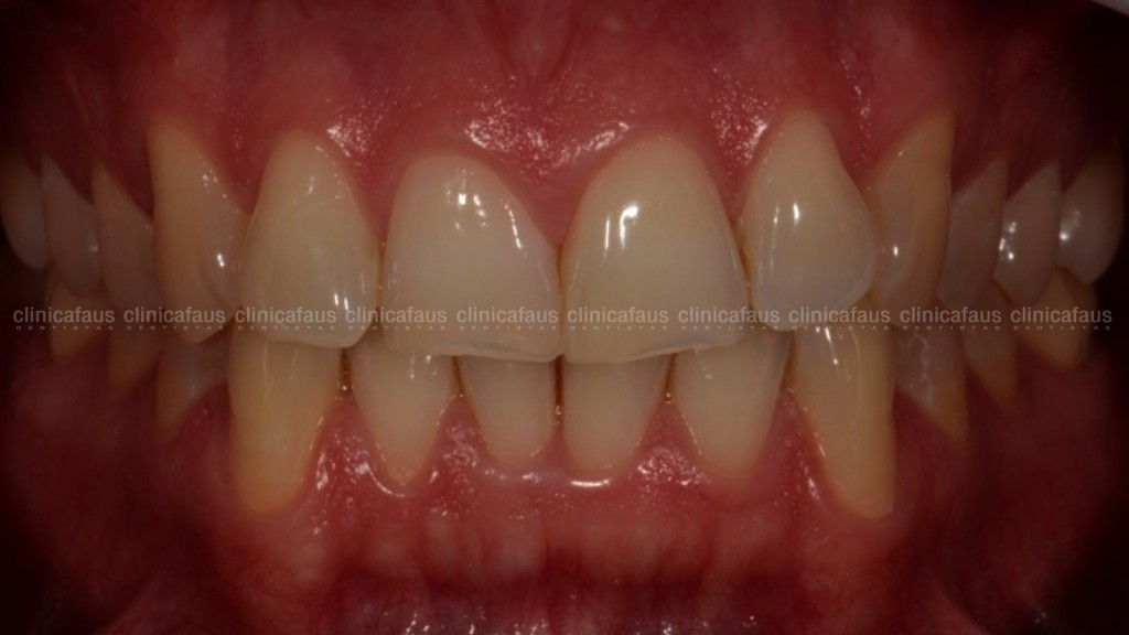 estetica dental valencia dentista clinica dental algemesi