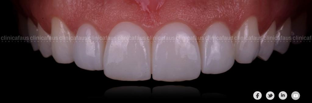 Ortodoncia, carillas, blanqueamiento dental valencia algemesi dentista clinica dental.003