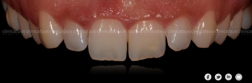 Ortodoncia, carillas blanqueamiento dentalvalencia algemesi dentista clinica dental.003