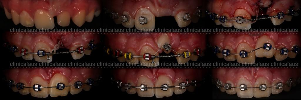 clinica dental valencia algemesi alzira carcaixent sueca cullera dentista ortodoncia