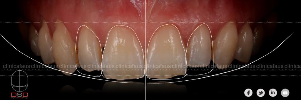 dentista en algemesi clinica dental valencia sueca cullera