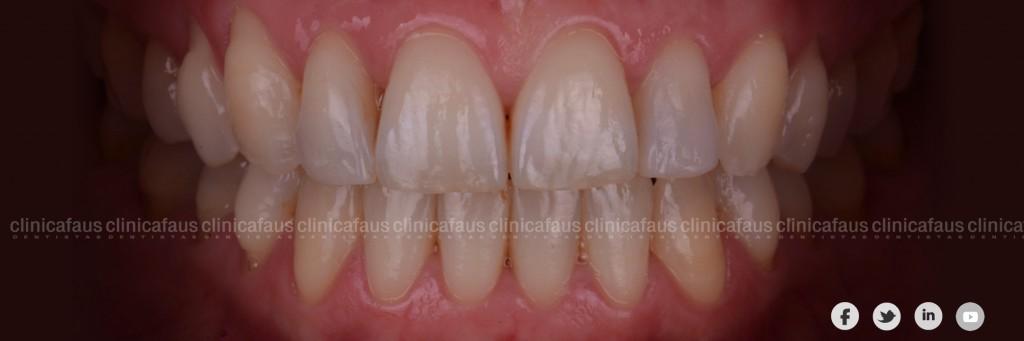 estetica dental valencia algemesi clinica dental alzira sueca carcaixent valencia