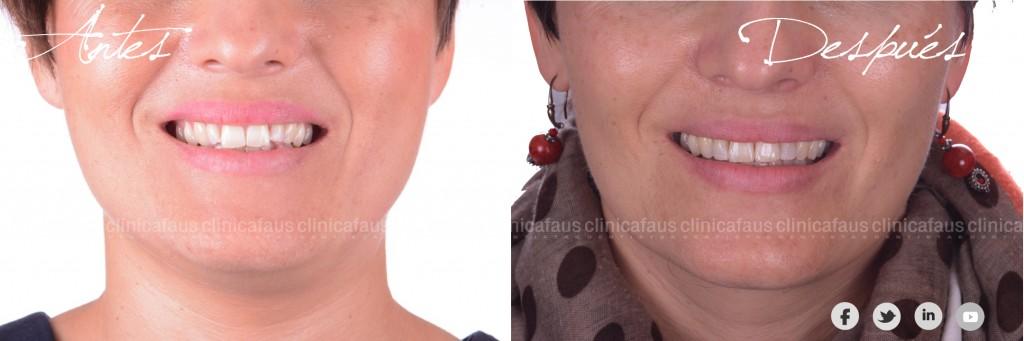 clinica dental dentista valencia algemesi sueca alzira cuellera