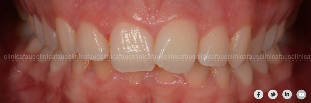 dentista especialista en ortodoncia invisible valencia algemesi sueca cullera