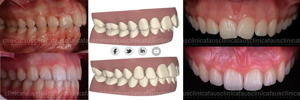 ortodoncia invisible valencia alzira algemesi sueca carcaixent
