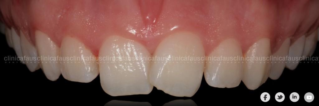 dentista ortodoncista especilista invisalign valencia algemesi azlira cullera sueca