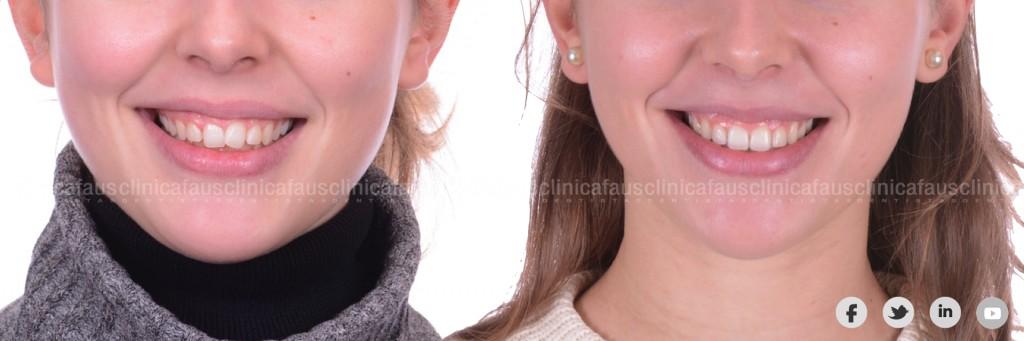 dentista especialista ortodoncia inviisible valencia algemesi sueca cullera carcaixent valencia