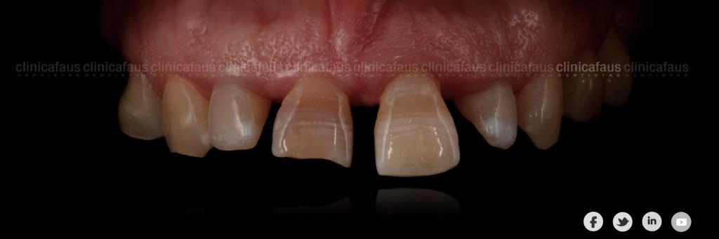 sonrisa gingival carillas dentales ortodoncia valencia algemesi alzira sueca cullera xativa carcaixent dentista clinica dental.003
