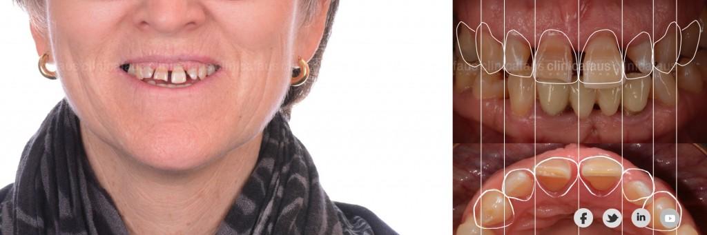 sonrisa gingival carillas dentales ortodoncia valencia algemesi alzira sueca cullera xativa carcaixent dentista clinica dental.005