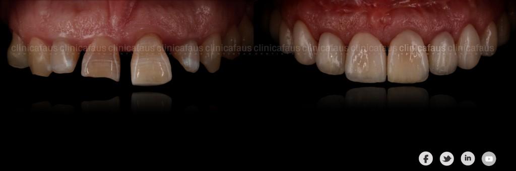 sonrisa gingival carillas dentales ortodoncia valencia algemesi alzira sueca cullera xativa carcaixent dentista clinica dental.006