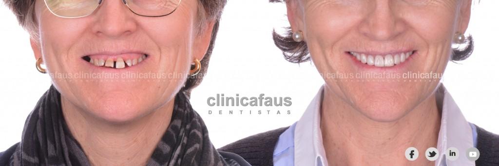 sonrisa gingival carillas dentales ortodoncia valencia algemesi alzira sueca cullera xativa carcaixent dentista clinica dental.010