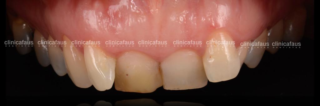 ortodoncia invisible carillas dentales blanqueamiento algemesi valencia sueca carcaixent alzira cullera españa.001