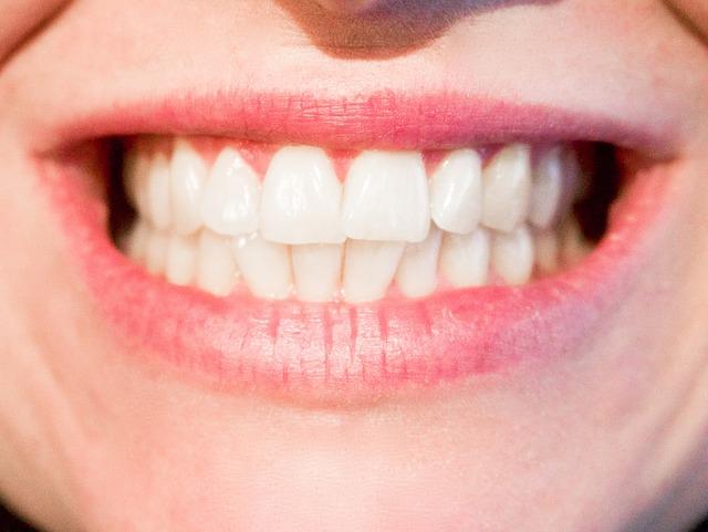 Ortodoncia lingual en Clínica Faus Algemesi