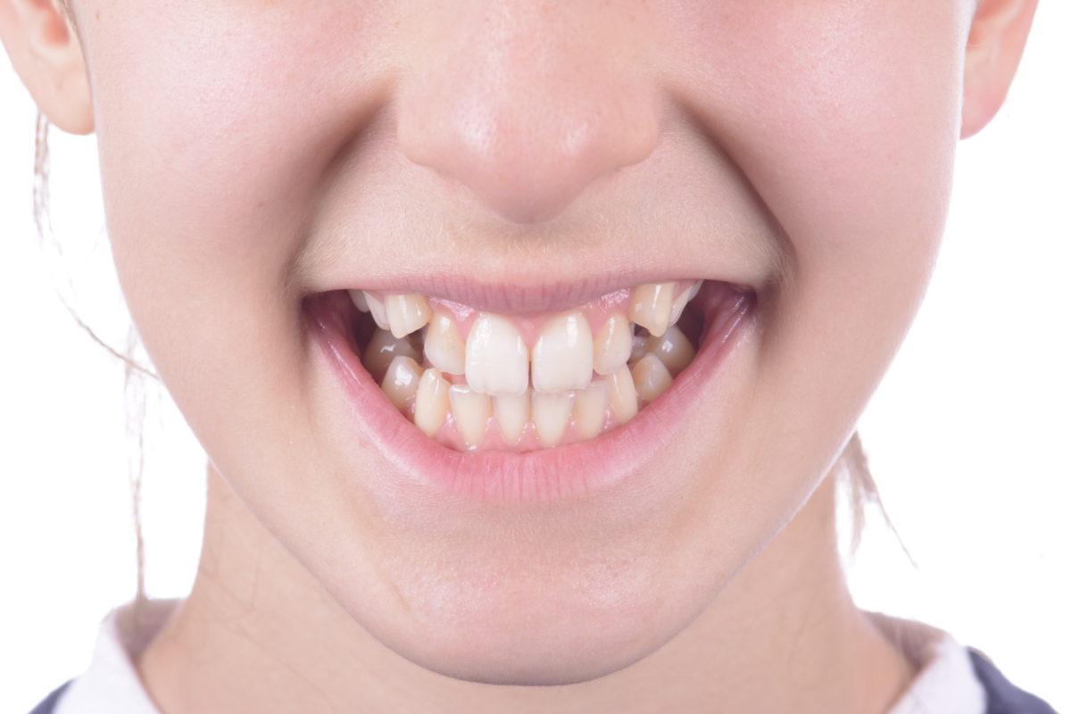 ortodoncia antes y después algemesi valencia