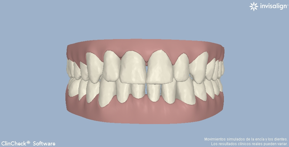 invisalign ortodoncia invisible valencia