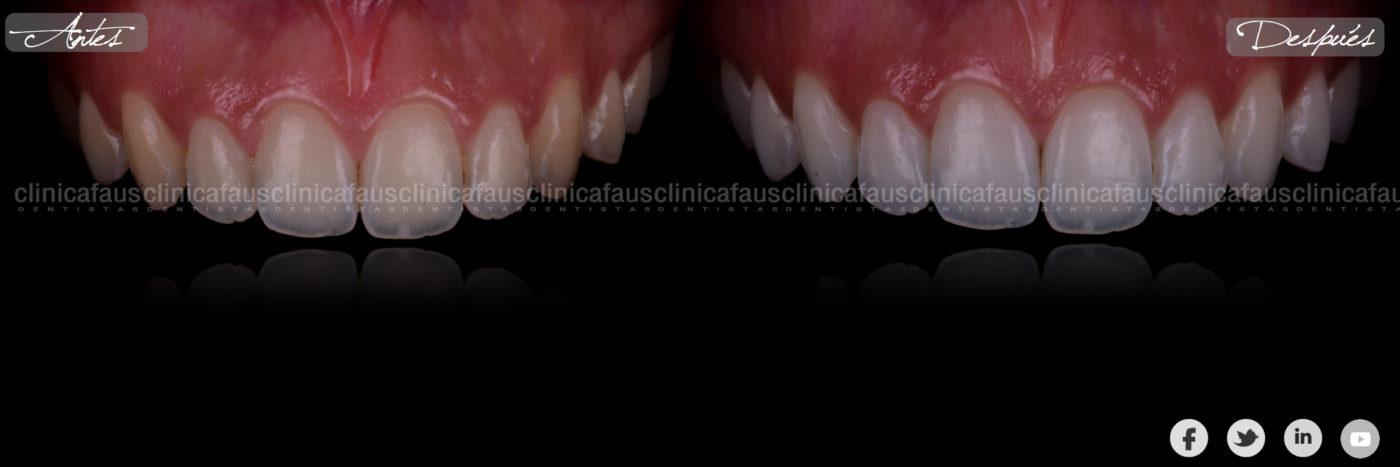 blanqueamiento dental valencia algemesi clinica dental dentista ortodoncia alzira carcaixent sueca cullera.002