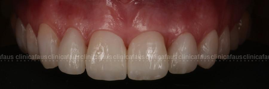 carillas dentales dentista algemesi clinica dental alzira sueca carcaixent valencia