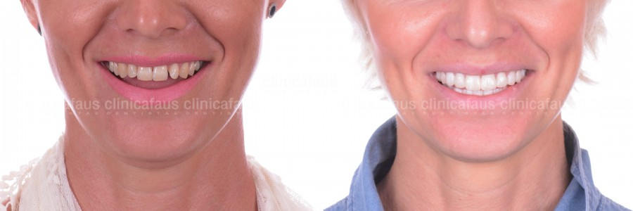 carillas de porcelana en valencia composite ceramica dentista estetica dental