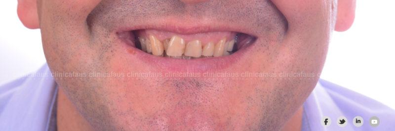dentista algemesi clinica dental alzira sueca carcaixent valencia