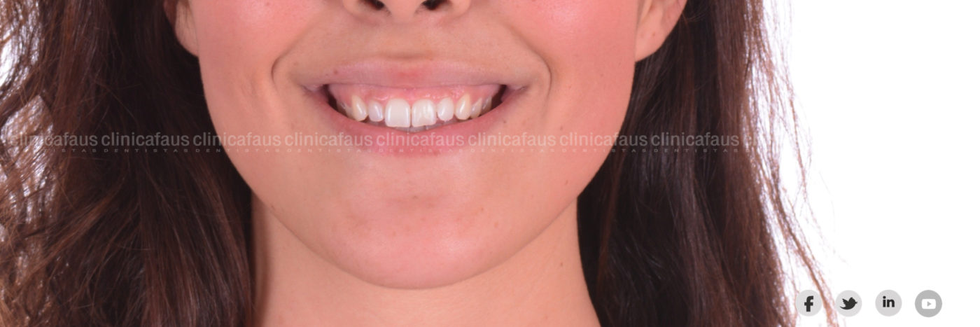 carillas ortodoncia invislaign valencia algemesi dentista clinica dental.003