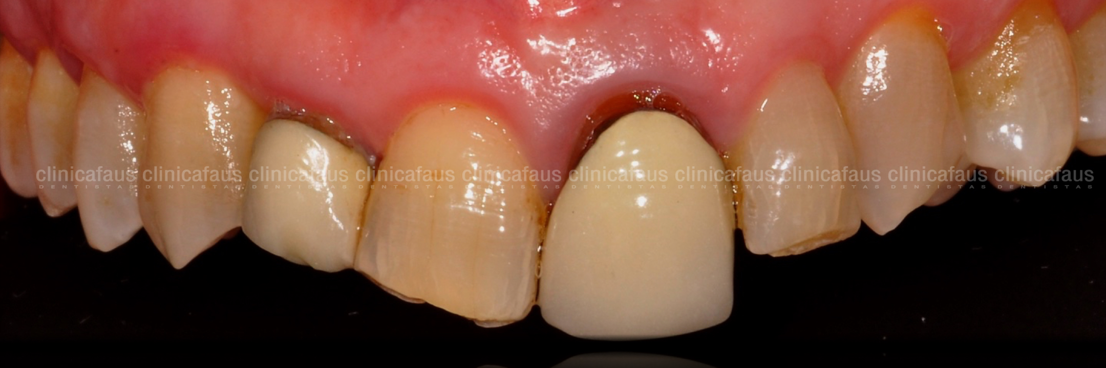 ortodoncia, ccarillas sin tallado y fundas sin metal caso complejo clase III mordida cruzada anterior sin extracciones sin cirugia carillas de ceramica dentista algemesi valencia sueca carcaixent alzira .001