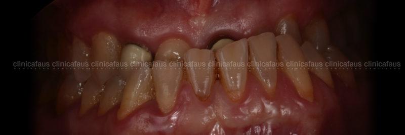 caso complejo clase III mordida cruzada anterior sin extracciones sin cirugia carillas de ceramica dentista algemesi valencia sueca carcaixent alzira .001
