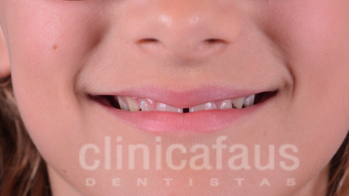 espacio entre los dientes diastema