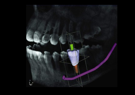 implantes dentales en alzira