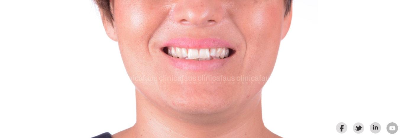 invisalign y carillas para mejorar la sonrisa en clinica dental algemesi valencia alzira sueca cullera