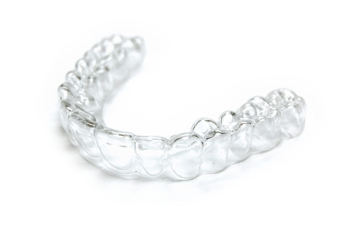 periodoncia valencia