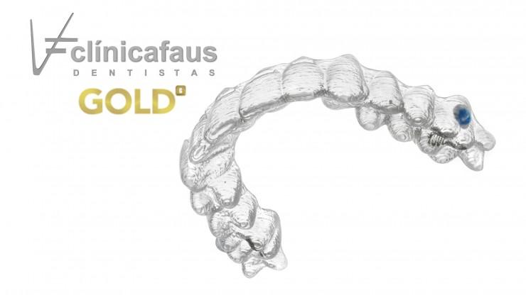 ortodoncia invisible invisalign valencia algemesi