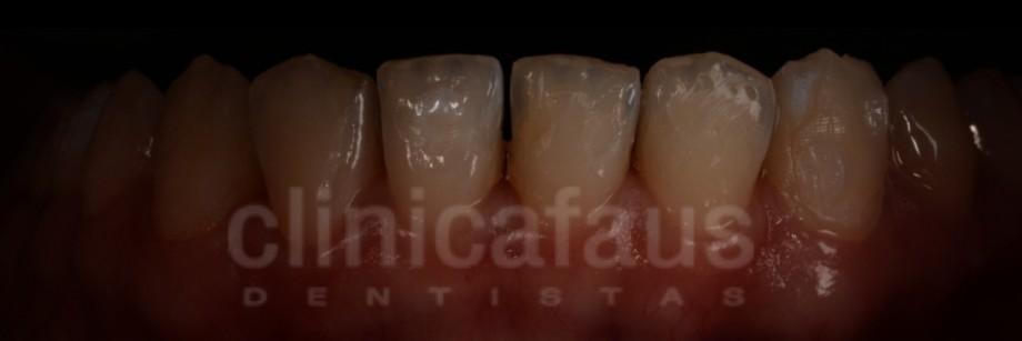 stripping dental ortodoncia valencia