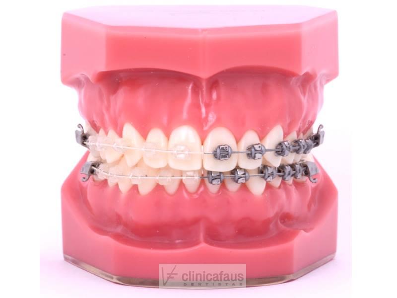 ortodoncia estetica en clinica faus